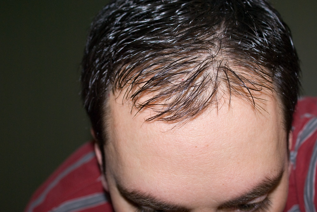 All You Need to Know About Hair Transplants